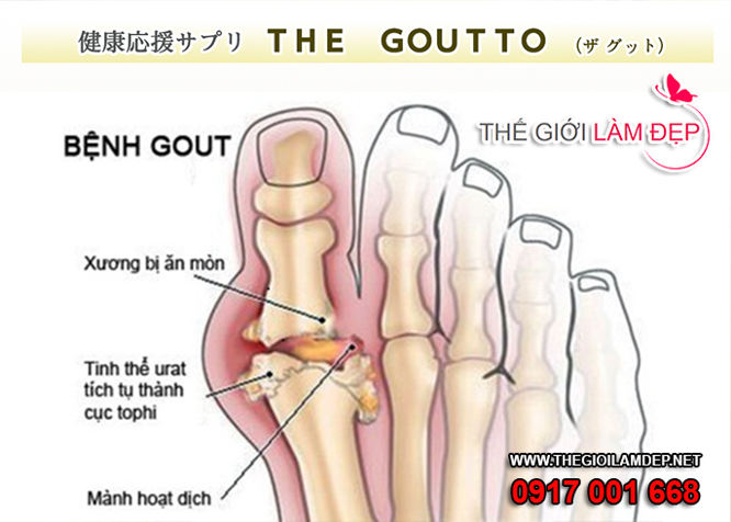 The goutto 240 vien Nhat Ban 1